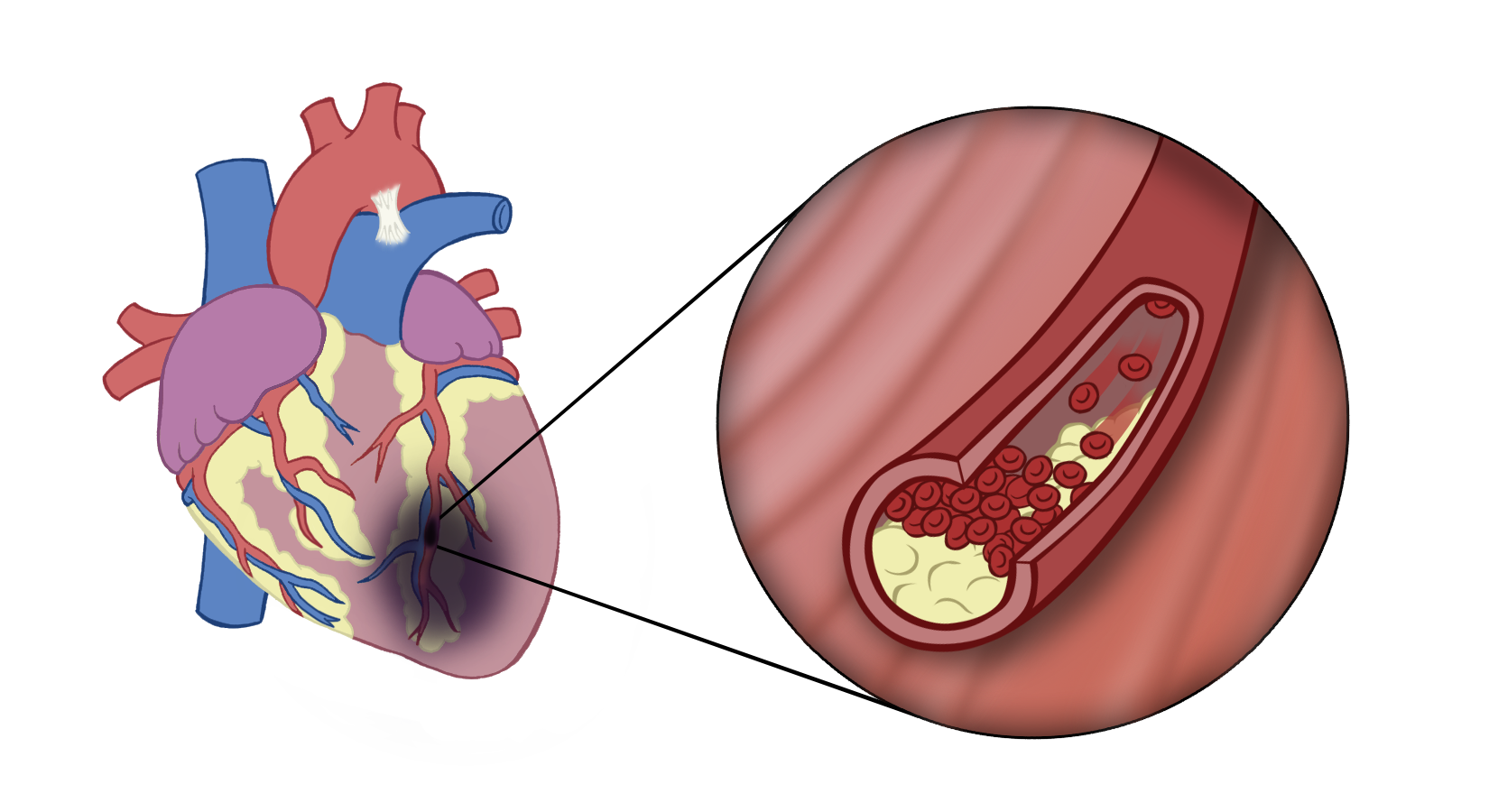 Plaque build up in the blood vessels of the heart