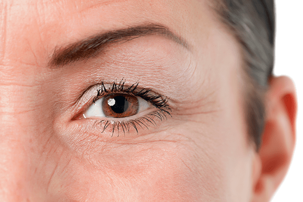 Surgical candidate for eyelid lift