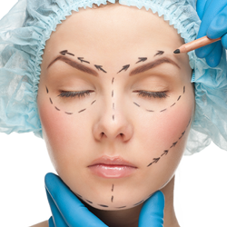Process for facelift and facial implants