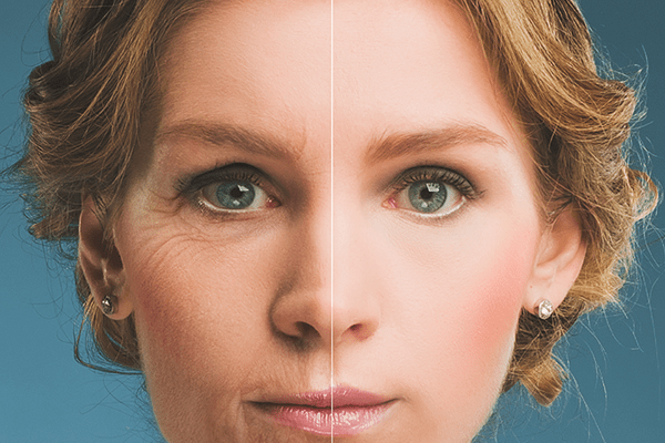 Postitive effects of non-surgical Botox