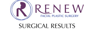 Renew Earlobe Repair Logo
