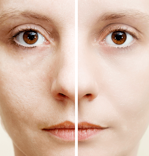 Reverse your skin's natural aging with SkinPen and PRP