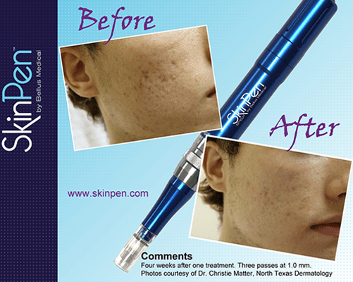 SkinPen with Platelet Rich Plasma can improve your skin dramatically.