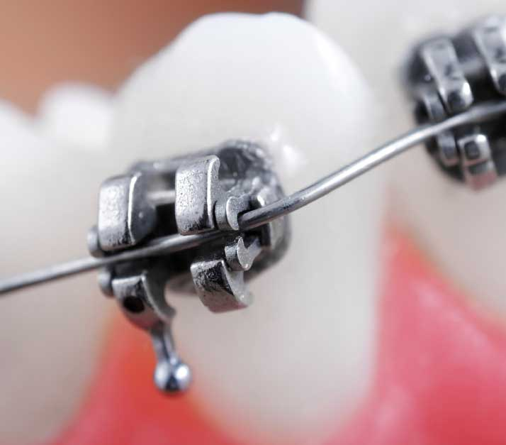Photo of metal orthodontic braces