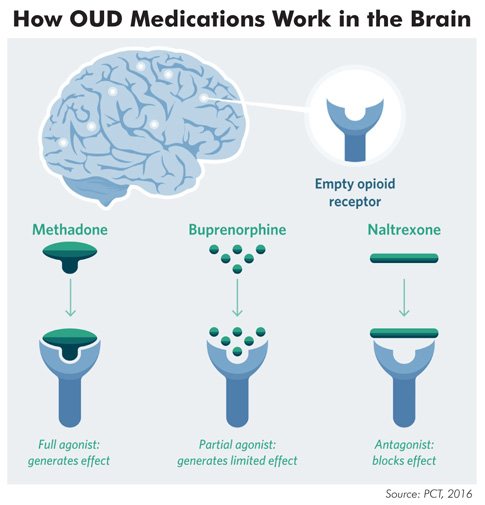How OUD Medications for opioids work in the brain illustration