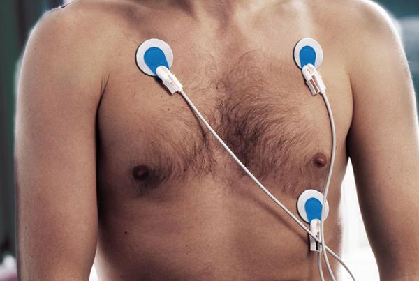 AMBU BlueSensor R Type ECG Electrodes (25 pack)