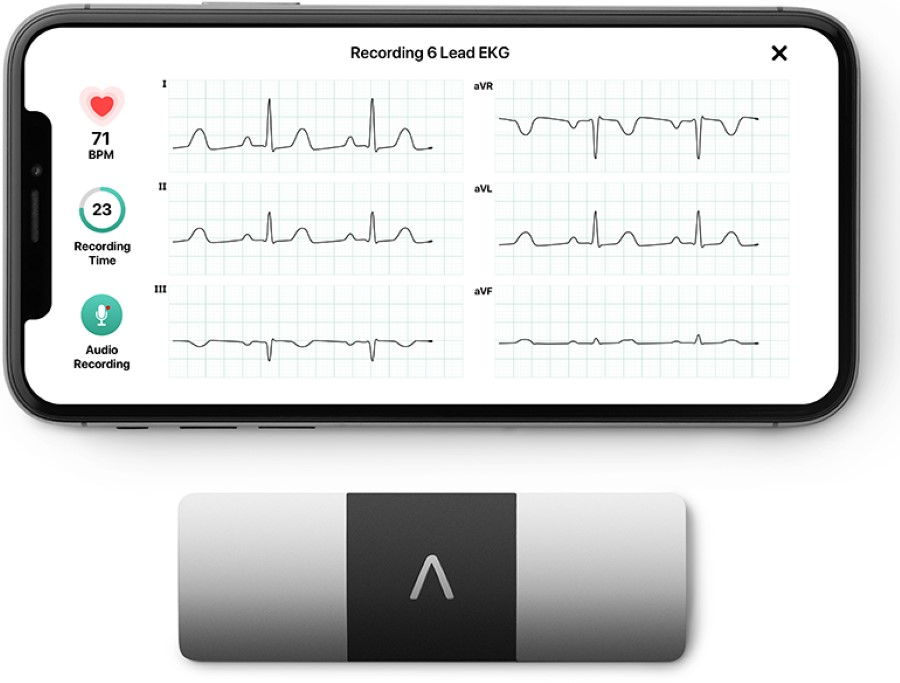AliveCor Kardia Mobile 6 Lead ECG for iPhone and Android