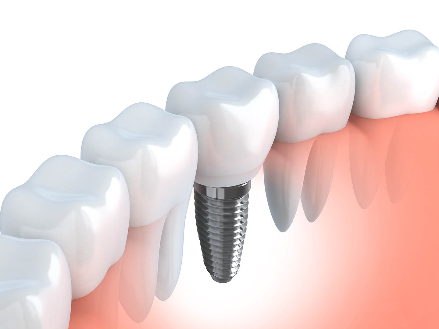 Graphic of single-tooth implants