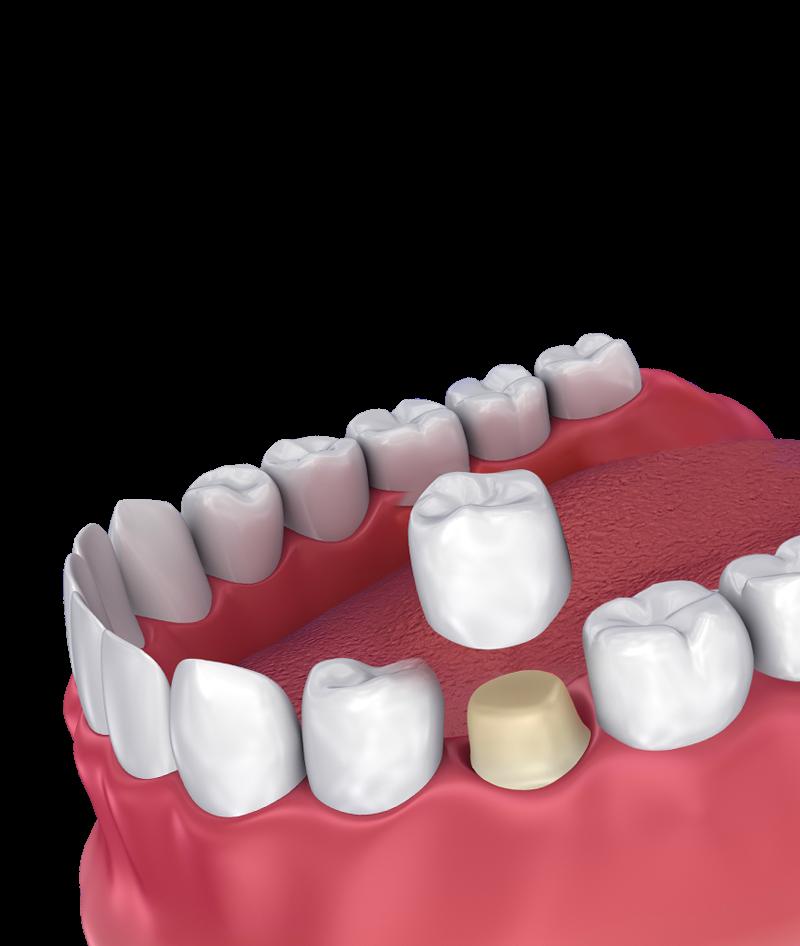 zobne prevleke in mostički