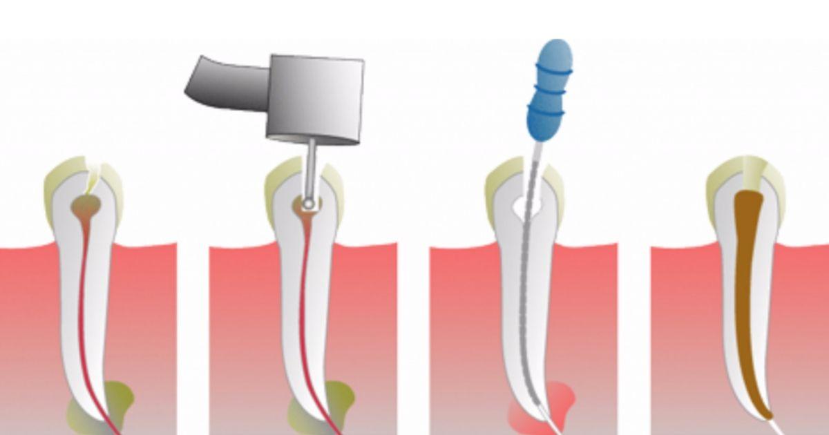 koreninsko zdravljenje zoba