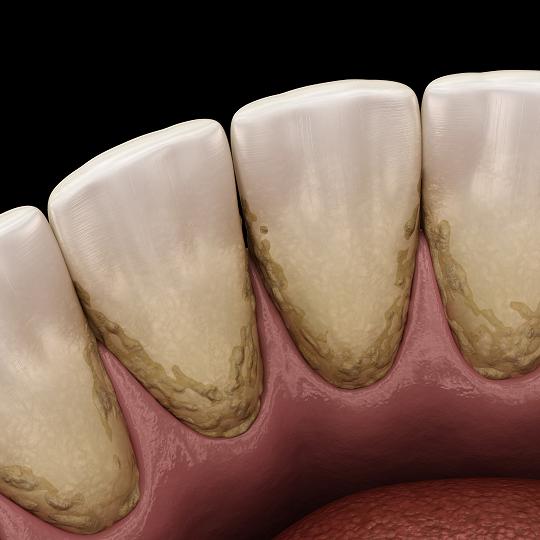 Zobni kamen