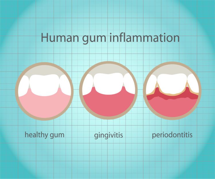 Gum inflammation graphic