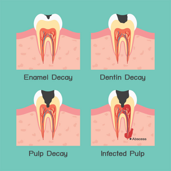 different types of decay