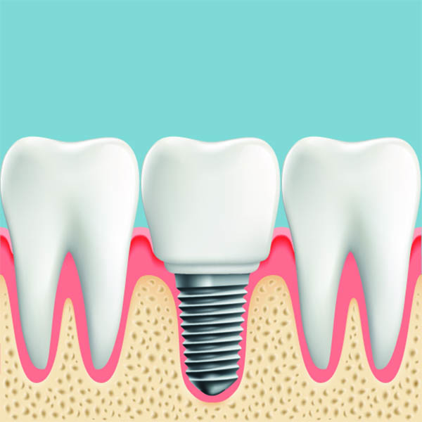 Dental implant graphic