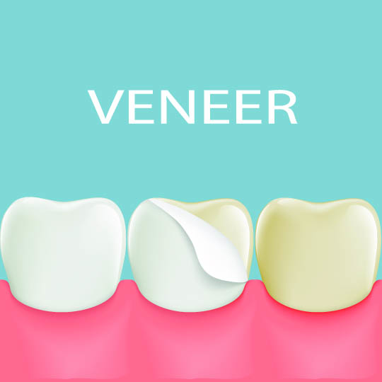 graphic of veneers