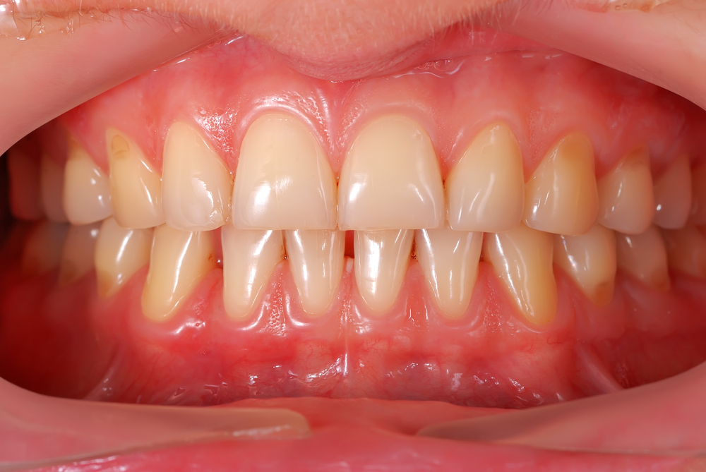 Why Are My Gums Itchy?