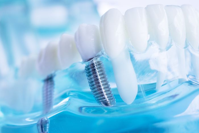 Healing After Dental Implants – What To Expect