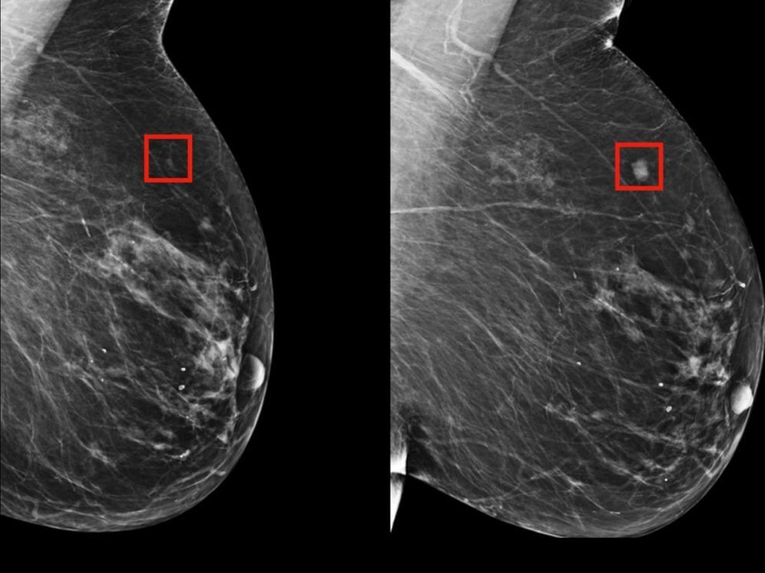 Radio des seins sans et avec intervention d'un IA mettant en valeur l'anomalie