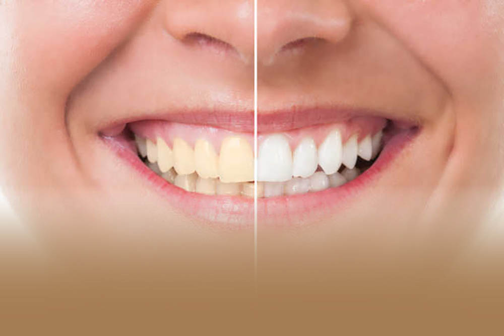Treatments Gorbals Dental Practice Glasgow Nhs And Private