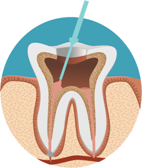 root canal treatment procedure