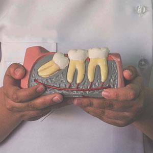 hawthorn dentist holding model of crooked teeth