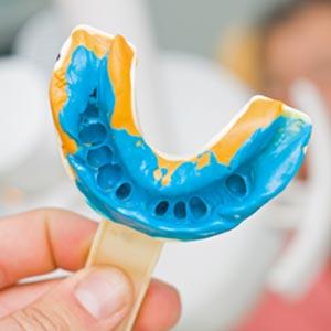 dental bridge mold