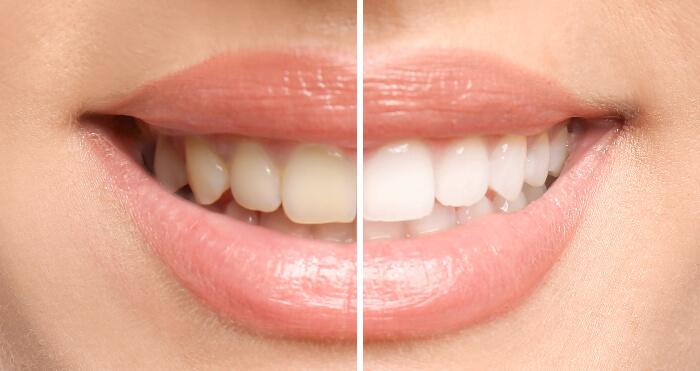 Does Teeth Whitening Cause Sensitivity?