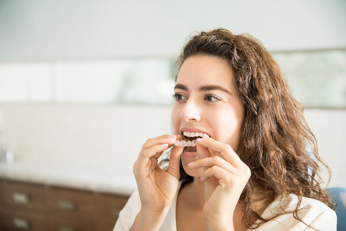 How Do Invisalign Attachments Work? Everything You Need To Know About Attachments