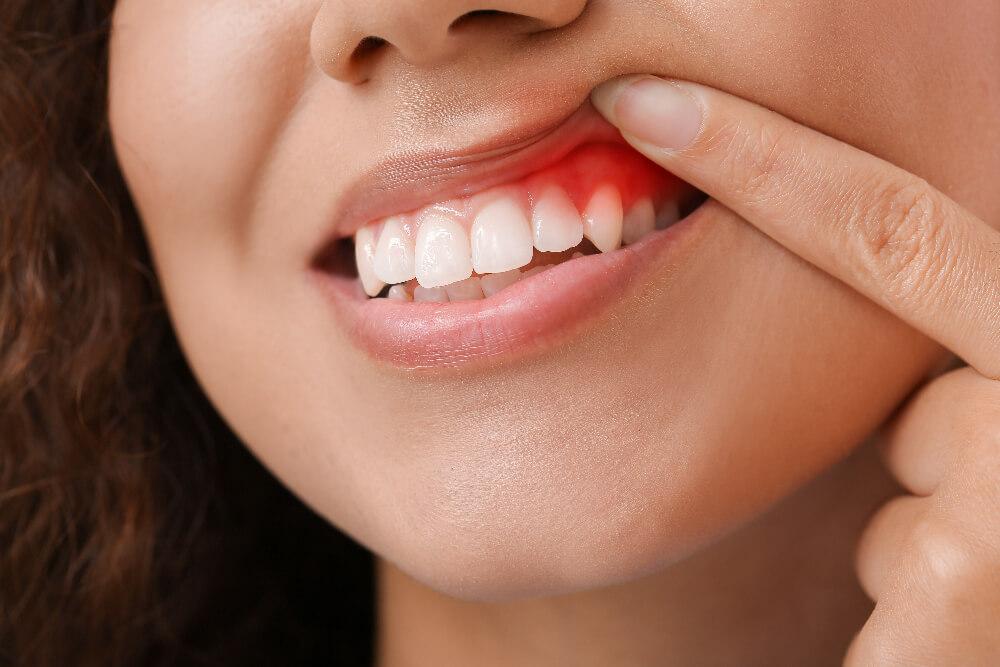 Gum Disease: Periodontitis Vs Gingivitis
