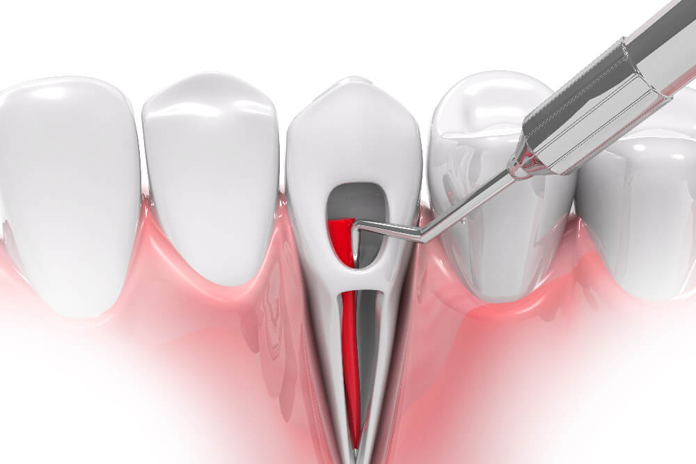 Root Canal Aftercare: What to Expect