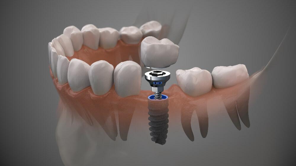 The Dental Implant Timeline