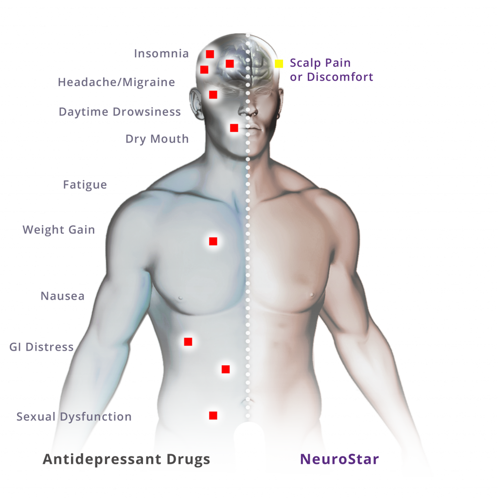 side effects of TMS diagram