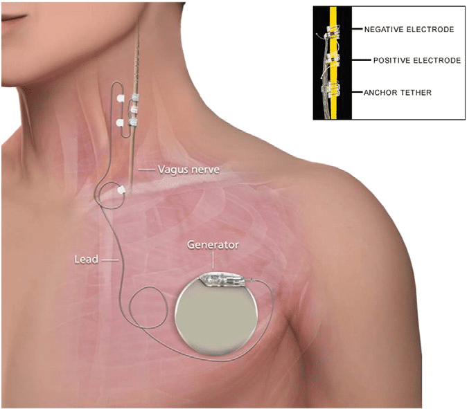 Location of Vagus Nerve Stimulation Device
