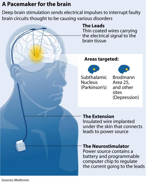 how deep brain stimulation works