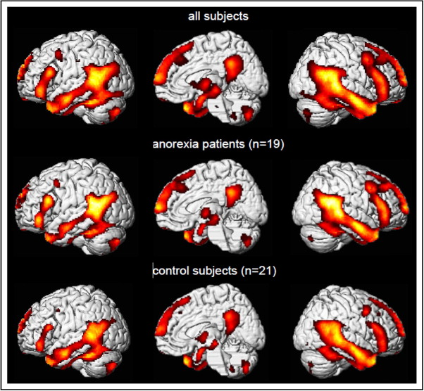 brain activity scans in anorexic patients