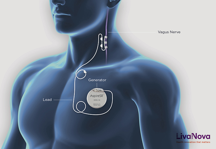 generator placement in agus nerver stimulation (VNS) device