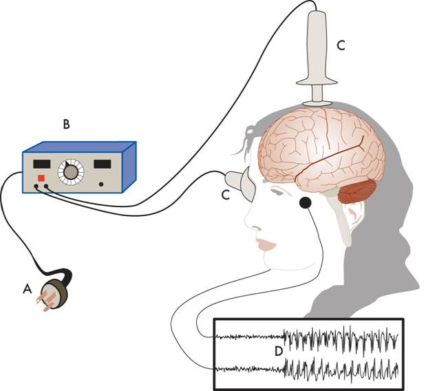 Electroconvulsive Therapy (ECT) diagram