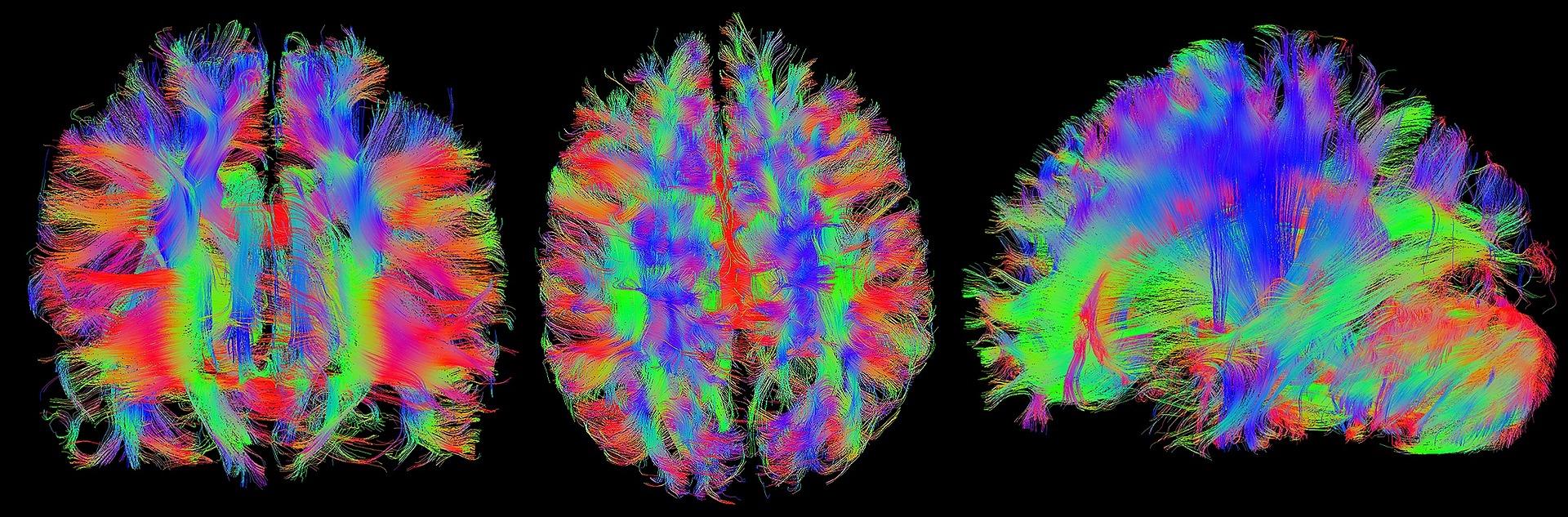 fluorescent colored brain illustrations
