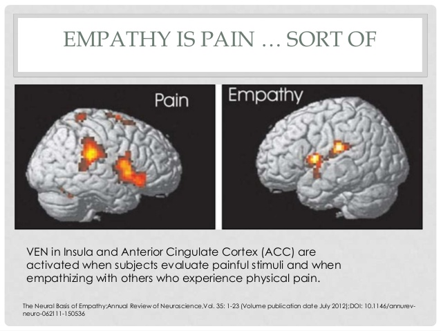 Visual representation of empathy and pain in the brain