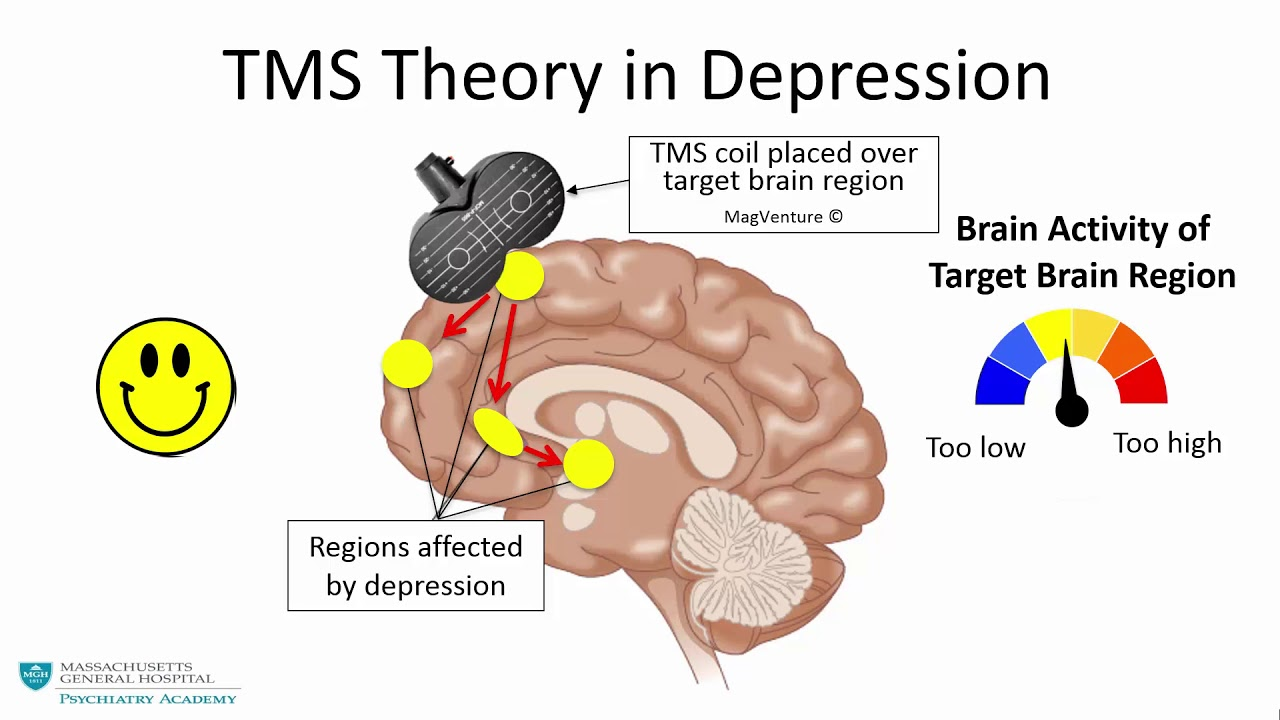 Animated representation of how TMS works to treat depression