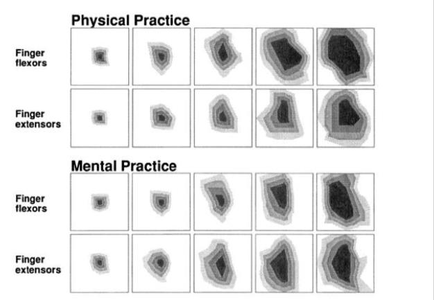 Fine motor skills enhanced by physical practice versus mental practice