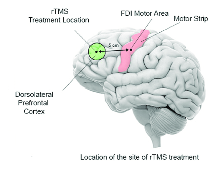 Diagram of TMS treatment location in the brain