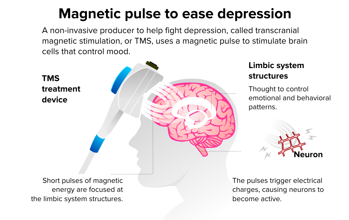 Diagram showing how TMS works to treat depression.