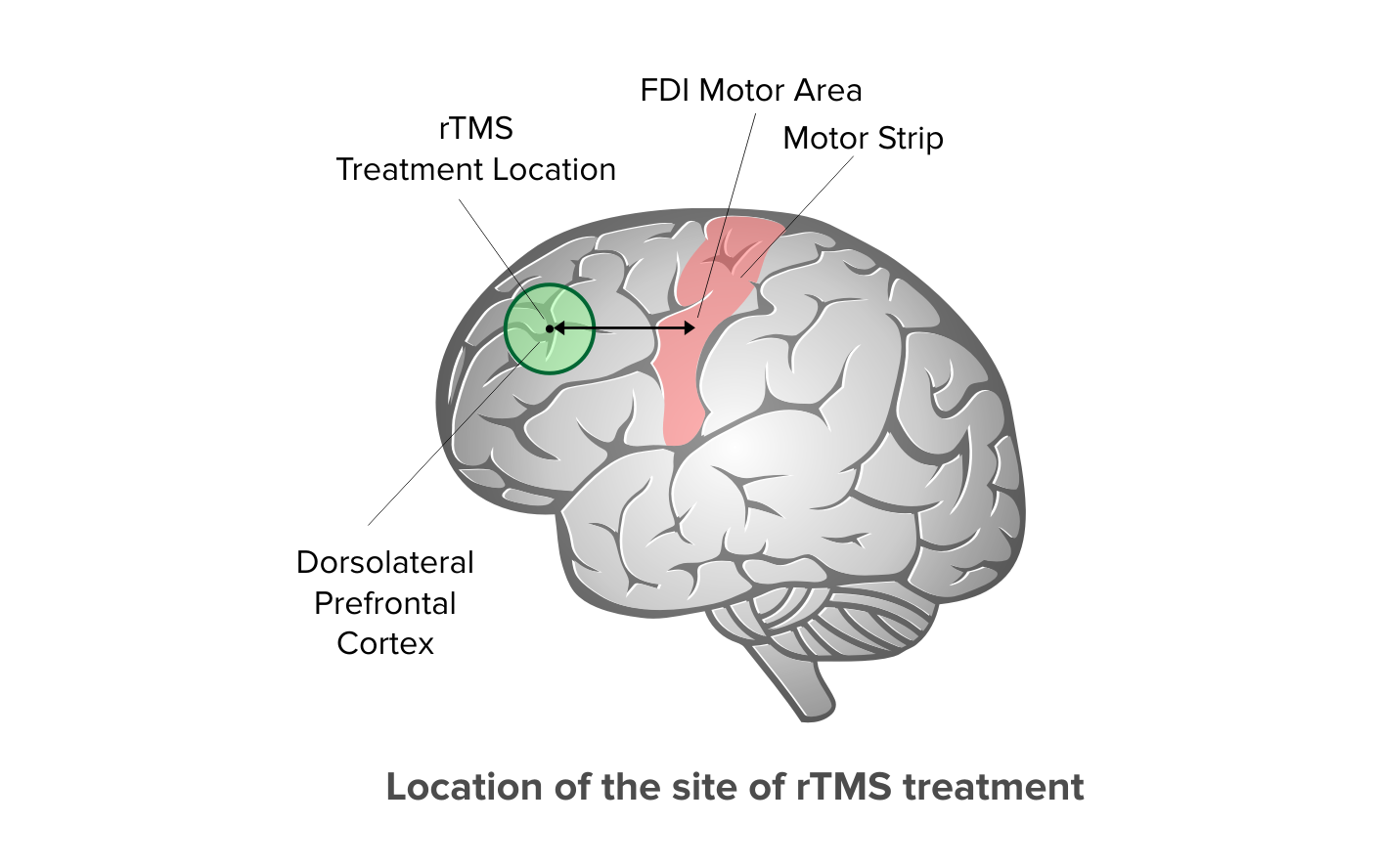 Diagram showing how TMS placement is determined.