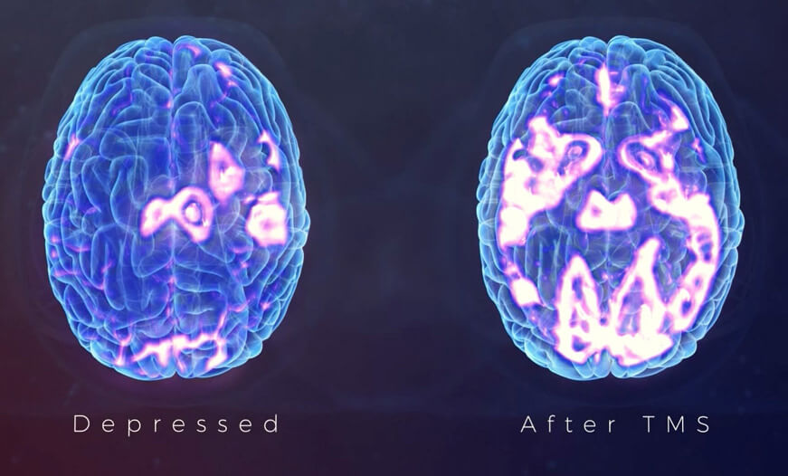 effects of depression on brain before and after tms