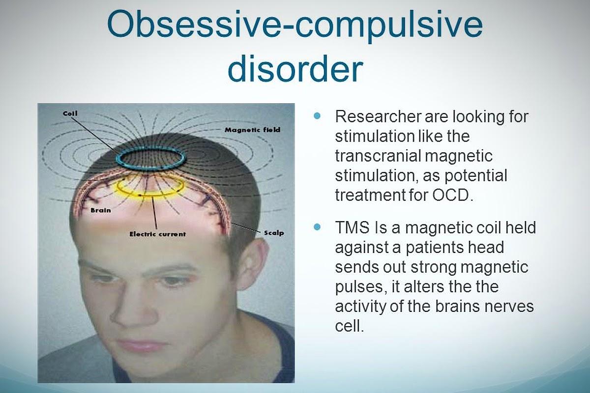 chart of how tms treats ocd
