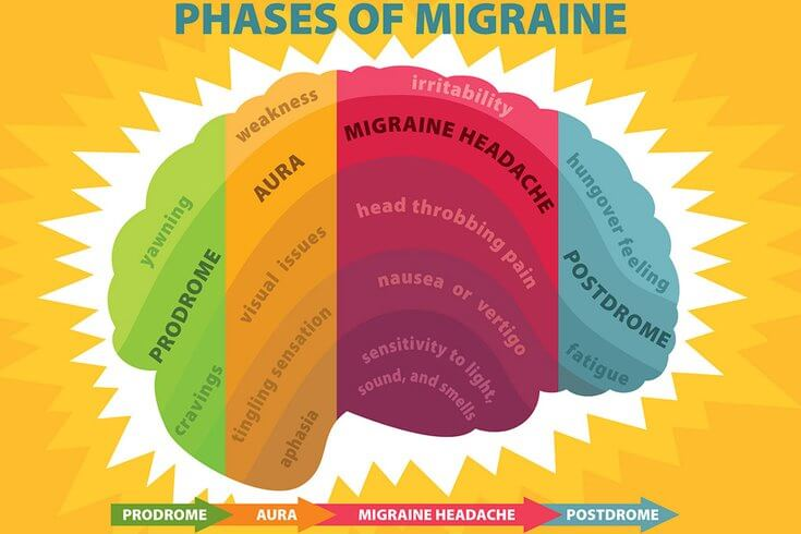 phases of a migraine
