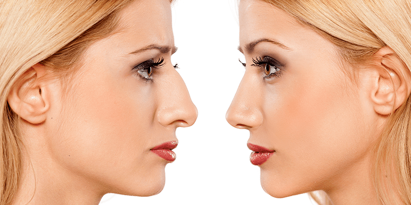 Functional and cosmetic rhinoplasty services performed by Dr. Terry McMillan