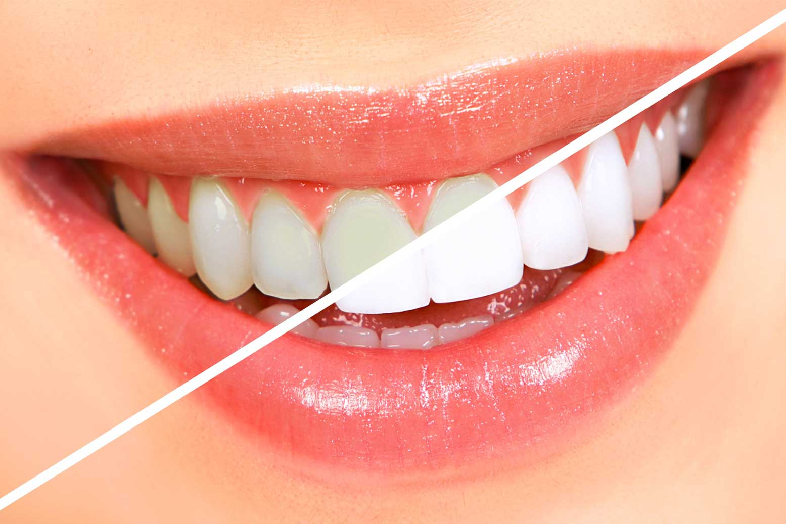Teeth Whitening Silver Sands Dental