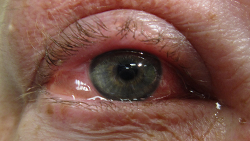 Allergic Conjunctivitis photo